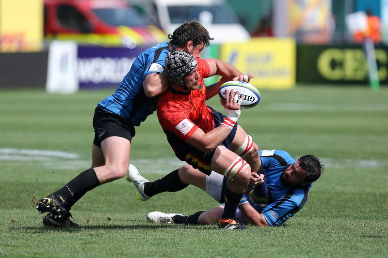 MRI Shows Professional Rugby May Be Associated with Brain Structure Changes