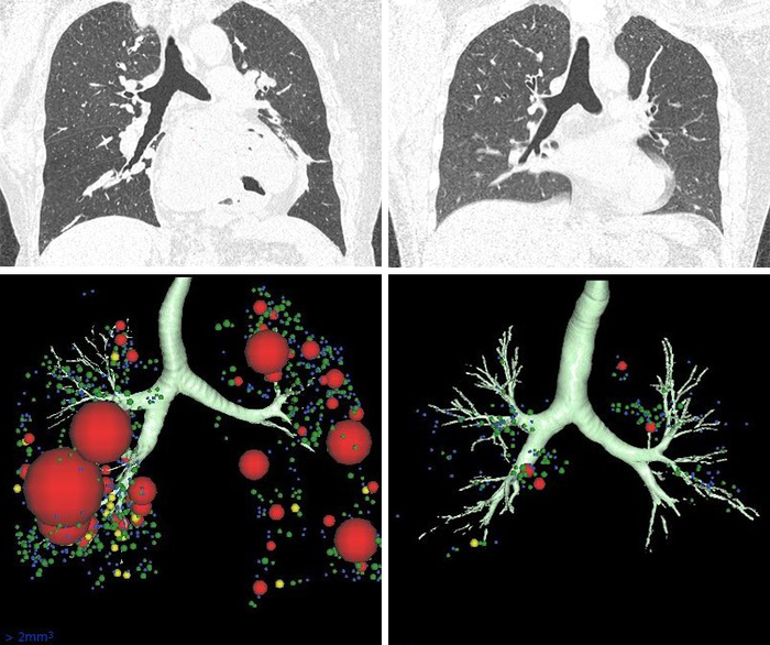 CT Scans Suggest Possible Lung Destruction in Some Asthmatics