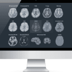 SpinTech Nabs FDA 510(k) Clearance for STAGE MRI Software