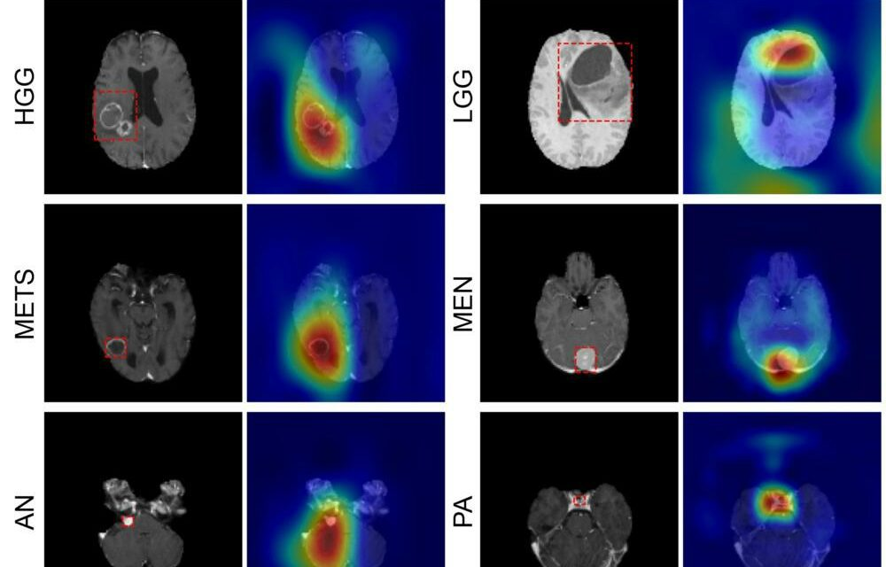 Deep Learning Model Classifies Brain Tumors with Single MRI Scan