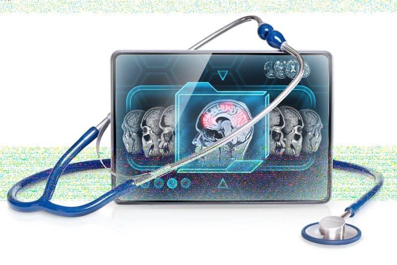 Researchers Apply Complex Mathematics to Analyze fMRI Data