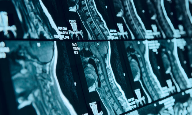3D Spiral Sequence Overcomes Conventional Challenges for Head and Neck MRI