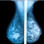 AI Digital Breast Tomosynthesis' Impact on Mammography Post-Breast Therapy