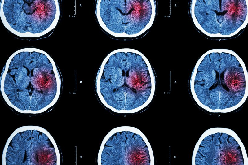 Emergency Neuroimaging Increased Considerably from 2007 to 2017