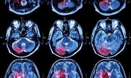 New MRI Methodology May Allow 'Unprecedented' Level of Stroke Lesion Analysis