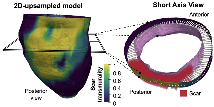 3D Mapping of Post-Infarction Scarring Increases the Prognostic Potential of Cardiac MRI