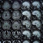 MD Anderson, Siemens Healthineers Collaborate for Quantitative MRI