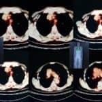QIBA-EARL Collaboration Improves PET/CT Conformance