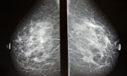Artificial Intelligence Tool Improves Accuracy of Breast Cancer Imaging