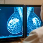 Same-Day Mammograms During COVID: Reduced Disparities, Faster Diagnoses