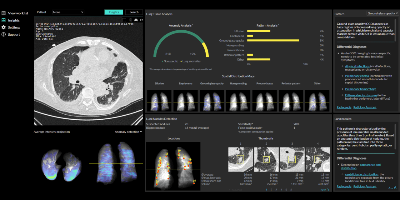 Wellbeing Software, contextflow Partner to Deliver AI Clinical Decision Support to Radiologists