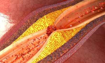 More Than 40% of Adults with No Known Heart Disease Had Fatty Deposits in Heart Arteries