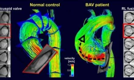 New Imaging Test May Detect Aortic Disease