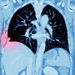 Artificial Intelligence Could Help Diagnose Lung Cancer a Year Earlier