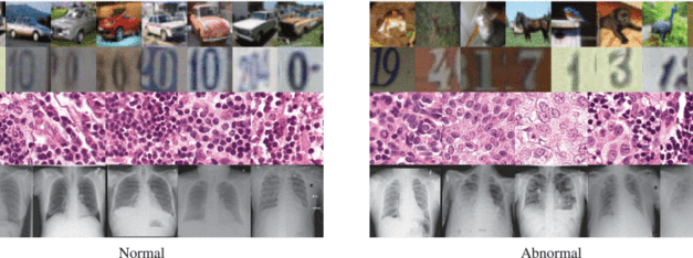 Artificial Intelligence Spots Anomalies in Medical Images
