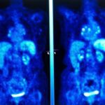 SNMMI Releases PET/CT in Oncology 2021: Part 1