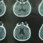 Fifty Years Ago, the First CT Scan Let Doctors See Inside a Living Skull