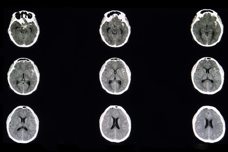 Imaging Identifies People at Risk of Aneurysms