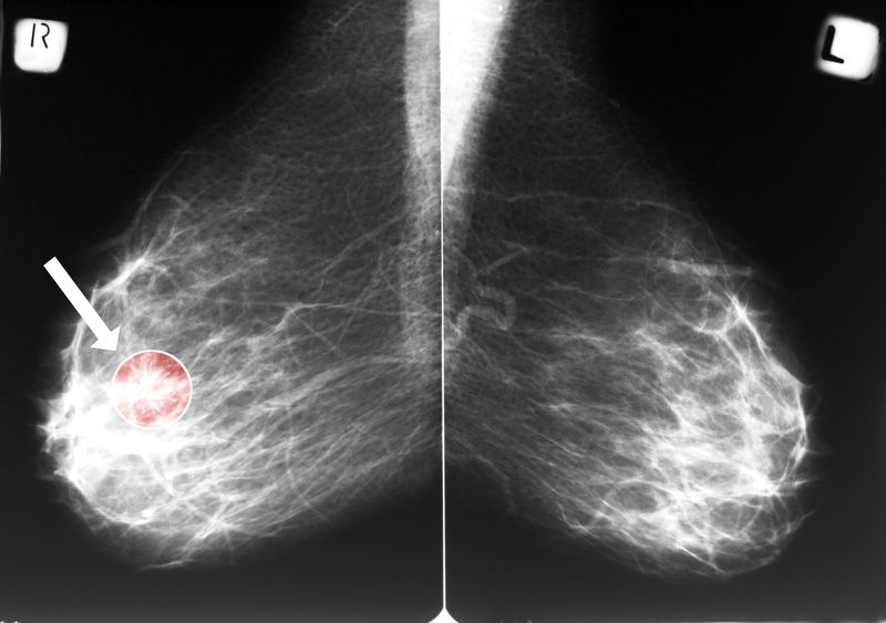 AI Helps Rule Out Cancer in Dense Breasts