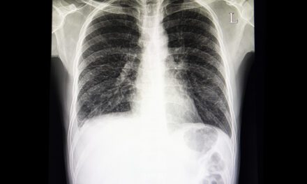 Deep Learning for Reticular Opacity on Chest Radiographs with Interstitial Lung Disease